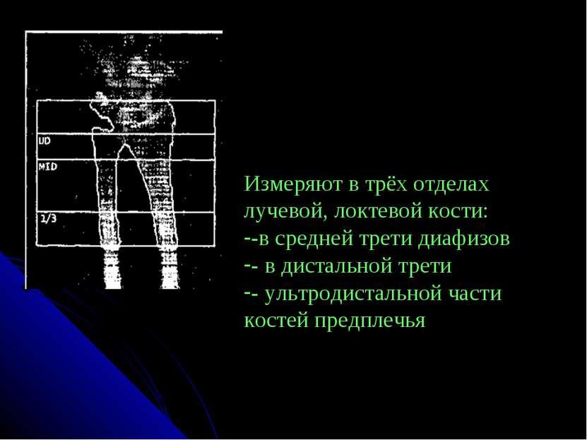Измеряют в трёх отделах лучевой, локтевой кости: -в средней трети диафизов - ...