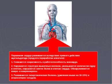 Поражение сердца развивается вследствие прямого действия ацетальдегида (проду...