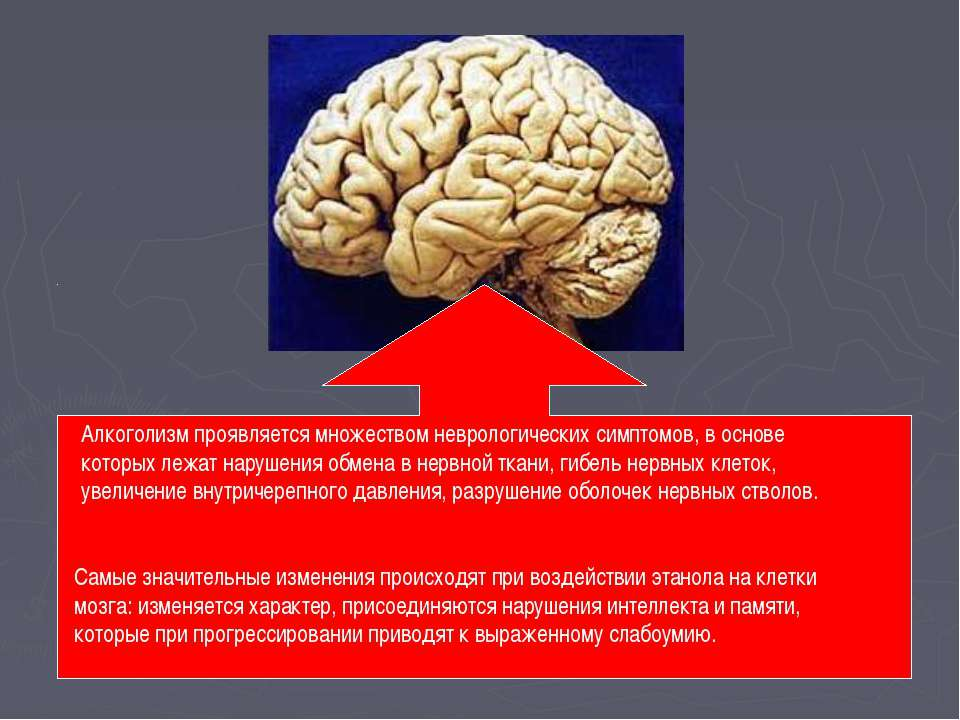 Алкоголизм проявляется множеством неврологических симптомов, в основе которых...