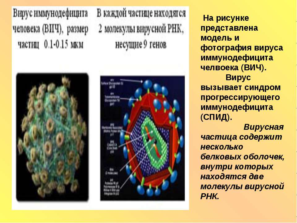 На рисунке представлена модель и фотография вируса иммунодефицита челвоека (В...