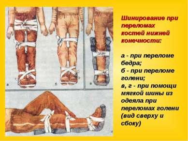 Шинирование при переломах костей нижней конечности: а - при переломе бедра; б...