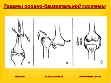 Травмы опорно-двигательной системы Перелом Вывих суставов Растяжение связок