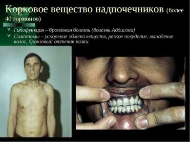 Корковое вещество надпочечников (более 40 гормонов) Гипофункция – бронзовая б...