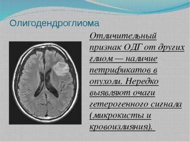 Олигодендроглиома Отличительный признак ОДГ от других глиом — наличие петрифи...