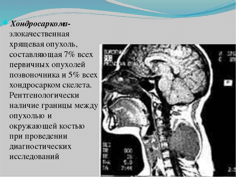 Хондросаркома- злокачественная хрящевая опухоль, составляющая 7% всех первичн...
