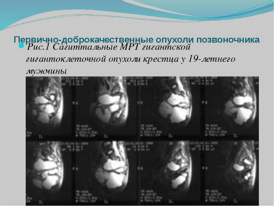 Первично-доброкачественные опухоли позвоночника Рис.1 Сагиттальные МРТ гигант...