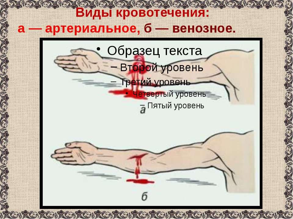 Виды кровотечения: а— артериальное, б— венозное.