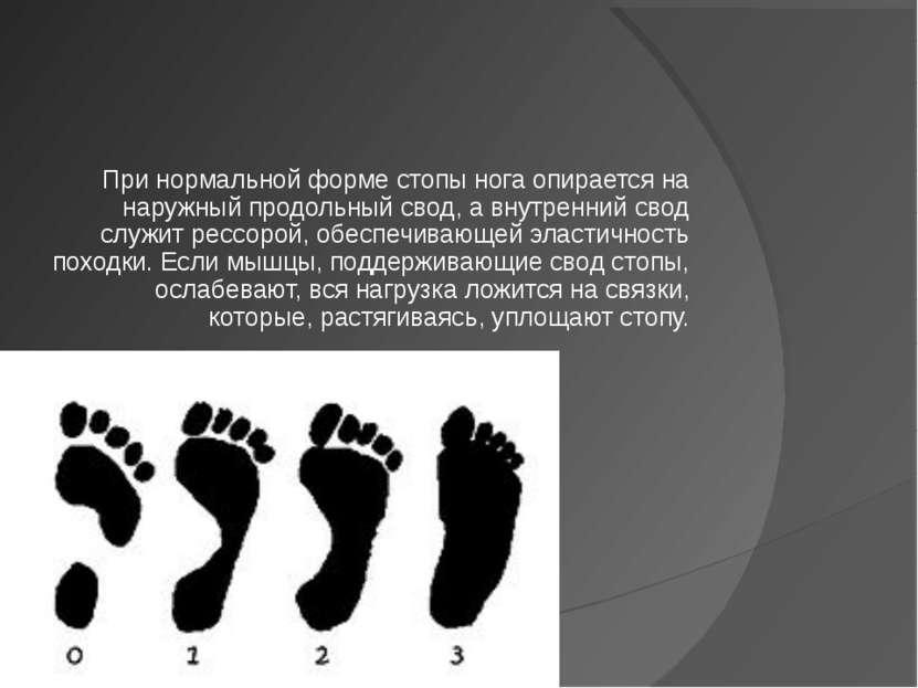 При нормальной форме стопы нога опирается на наружный продольный свод, а внут...