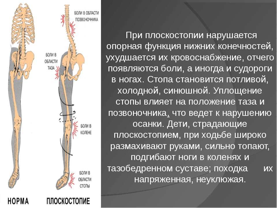 При плоскостопии нарушается опорная функция нижних конечностей, ухудшается их...