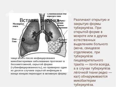 Различают открытую и закрытую формы туберкулёза. При открытой форме в мокроте...