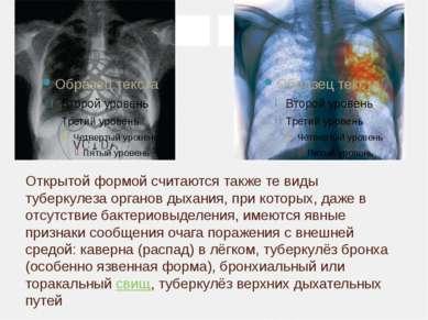 Открытой формой считаются также те виды туберкулеза органов дыхания, при кото...