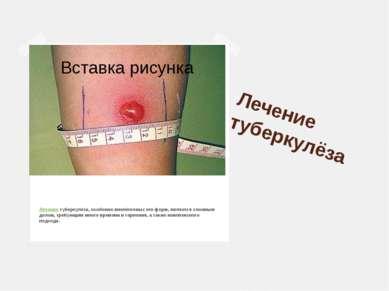 Лечение туберкулёза Лечениетуберкулёза, особенно внелёгочных его форм, являе...