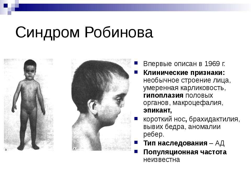 Синдром Робинова Впервые описан в 1969 г. Клинические признаки: необычное стр...