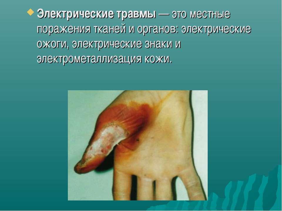 Электрические травмы— это местные поражения тканей и органов: электрические ...