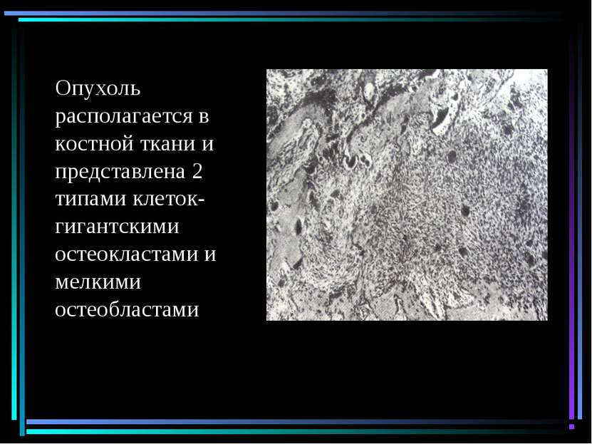 Опухоль располагается в костной ткани и представлена 2 типами клеток-гигантск...