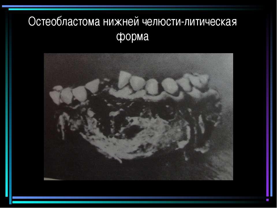 Остеобластома нижней челюсти-литическая форма