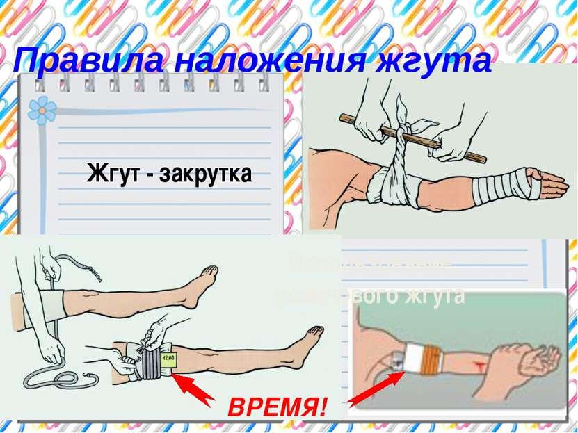 Правила наложения жгута Жгут - закрутка Использование резинового жгута ВРЕМЯ!