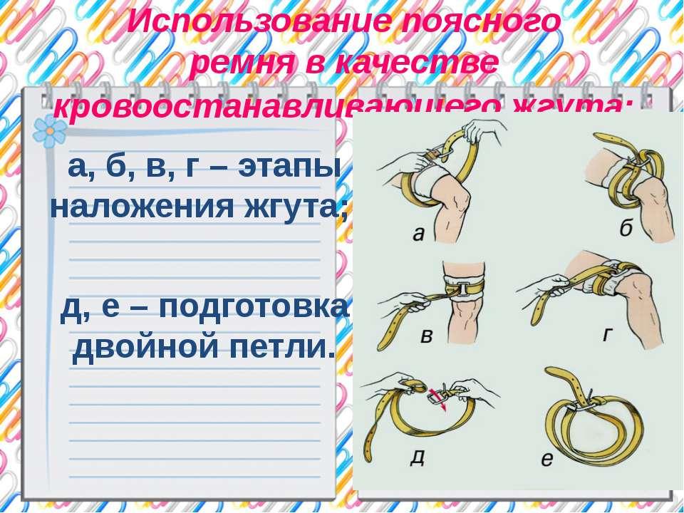 Использование поясного ремня в качестве кровоостанавливающего жгута: а, б, в,...