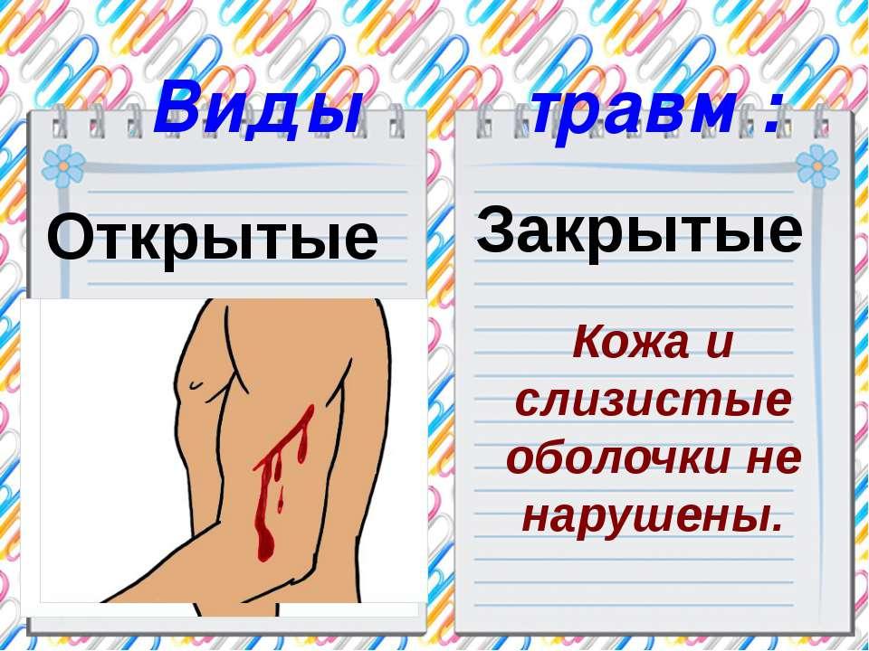 Виды травм : Открытые Вызывают кровотечения. Закрытые Кожа и слизистые оболоч...