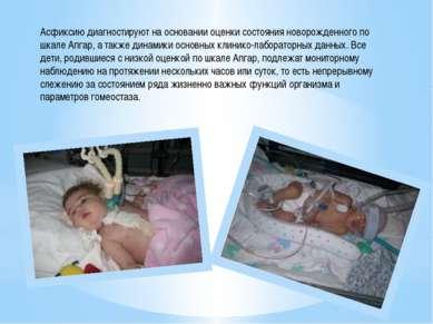 Асфиксию диагностируют на основании оценки состояния новорожденного по шкале ...