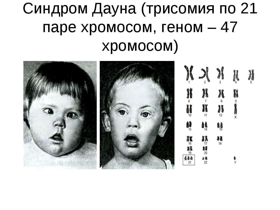Синдром Дауна (трисомия по 21 паре хромосом, геном – 47 хромосом)