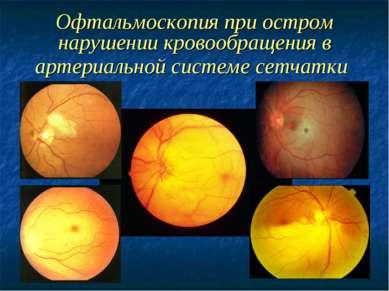 Офтальмоскопия при остром нарушении кровообращения в артериальной системе сет...