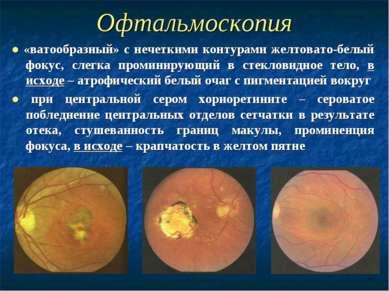 Офтальмоскопия ● «ватообразный» с нечеткими контурами желтовато-белый фокус, ...