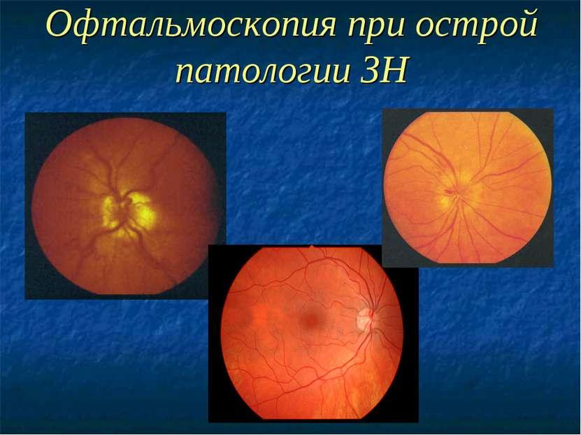 Офтальмоскопия при острой патологии ЗН