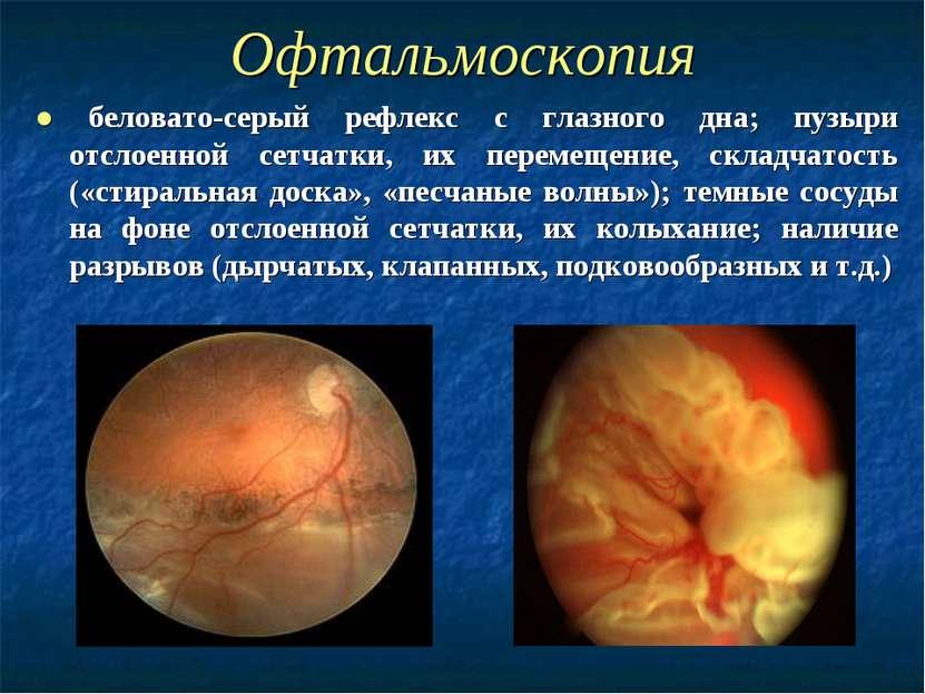 Офтальмоскопия ● беловато-серый рефлекс с глазного дна; пузыри отслоенной сет...