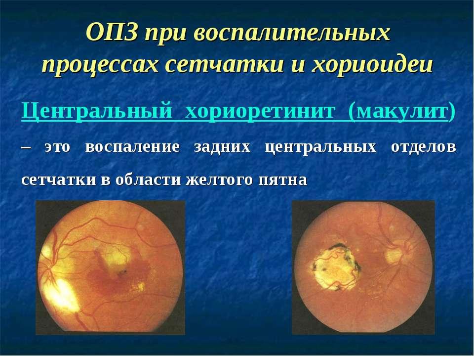 ОПЗ при воспалительных процессах сетчатки и хориоидеи Центральный хориоретини...