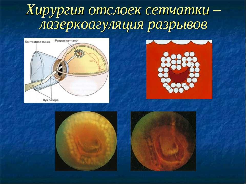 Хирургия отслоек сетчатки – лазеркоагуляция разрывов