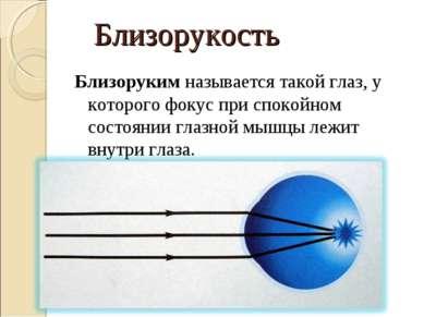 Близорукость Близоруким называется такой глаз, у которого фокус при спокойном...