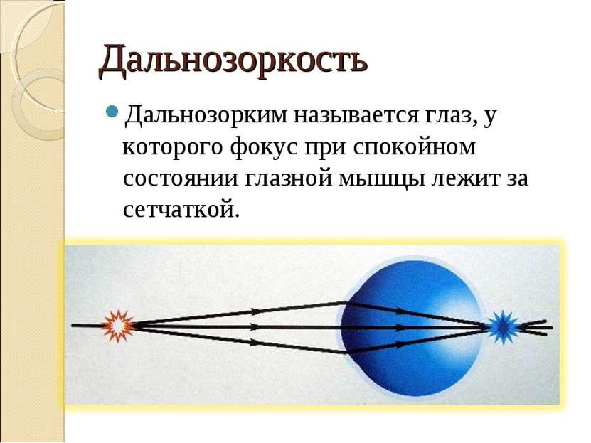 Дальнозоркость Дальнозорким называется глаз, у которого фокус при спокойном с...