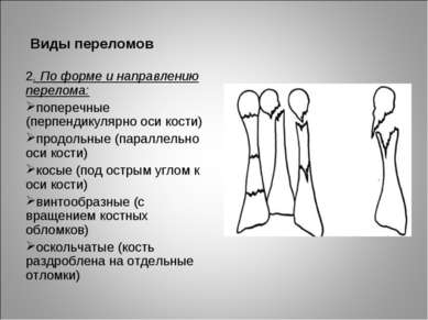 Виды переломов 2. По форме и направлению перелома: поперечные (перпендикулярн...