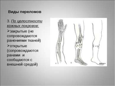 Виды переломов 3. По целостности кожных покровов: закрытые (не сопровождаются...